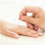 Image of acupuncture needles in a resting hand
